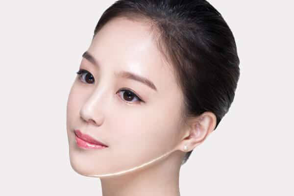 plastic surgery facial fat transfer v lift