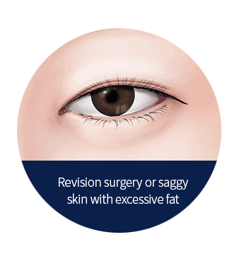 eyelid revision surgery for skin with excessive fat