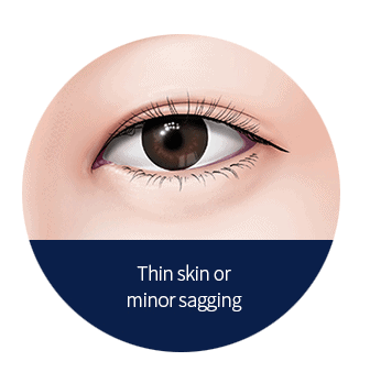 thin skin on upper eyelid with minor sagging