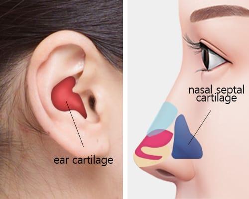 enhance nose tip surgery