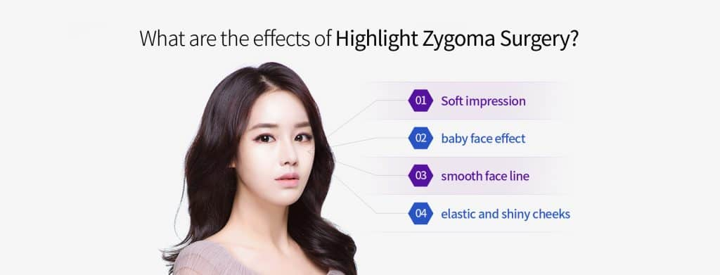 zygomas cheekbone reduction