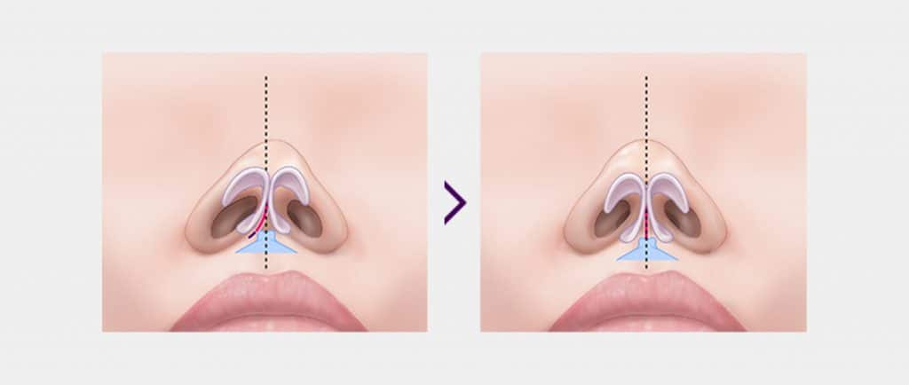 deviated septum surgery