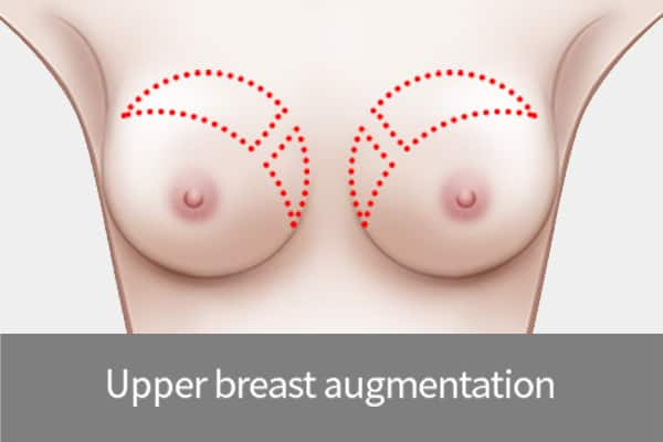 fat grafting to upper breast