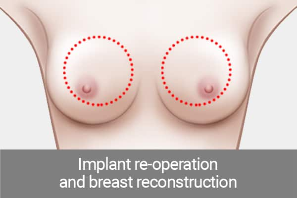 fat grafting or injection for breast reconstruction