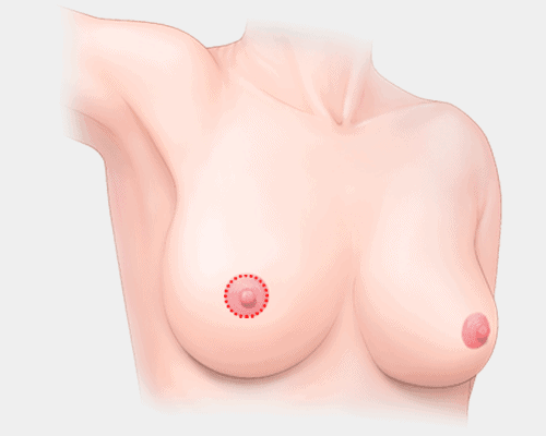 breast lift surgery - areola incision