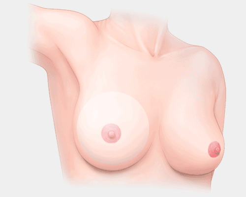 breast lift with implants at dream plastic surgery singapore