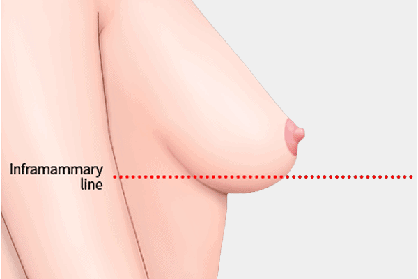 breast lift for mild sagging