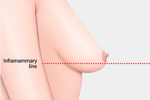 breast lift for moderate sagging