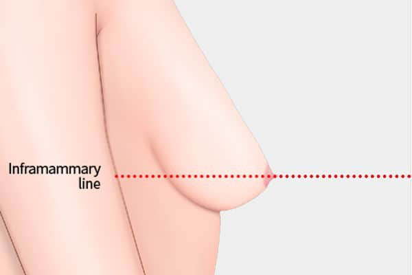 breast lift for severe sagging