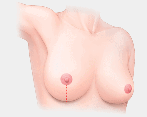 breast lift surgery - lollipop incision
