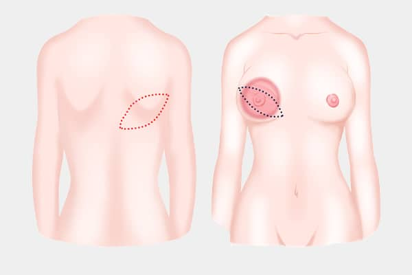 breast reconstruction surgery with flap - dream aesthetics and plastic surgery singapore