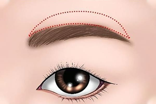 brow lift surgery procedure - dream plastic surgery singapore