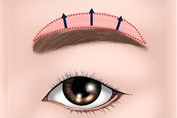 brow lift skin tightening - dream plastic surgery singapore