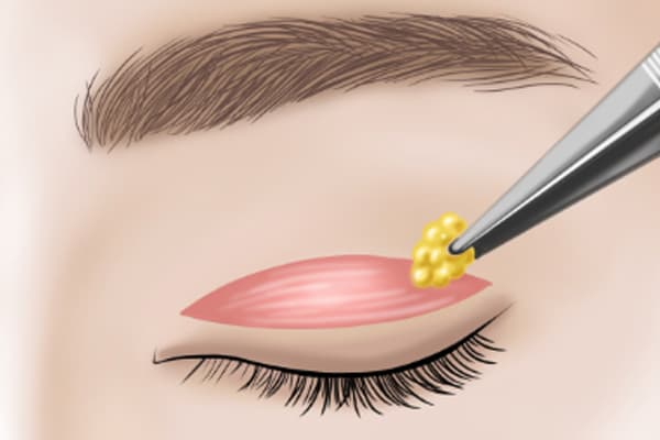 incisional double eyelid surgery with fat removal - dream plastic surgery singapore