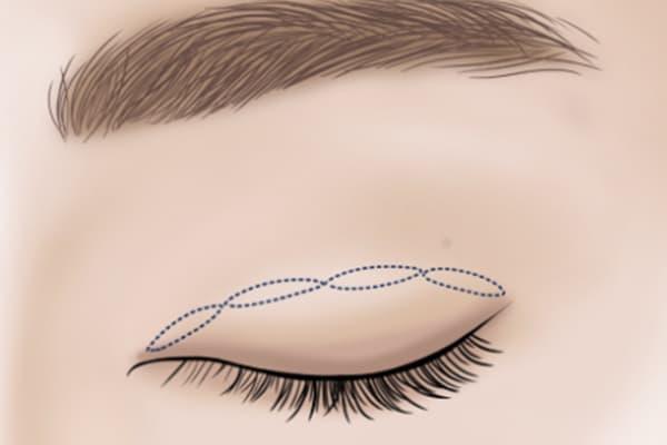 suture - non cutting - double eyelid surgery - dream plastic surgery singapore
