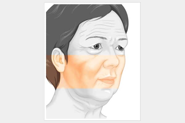 facelift surgery for saggy cheeks area