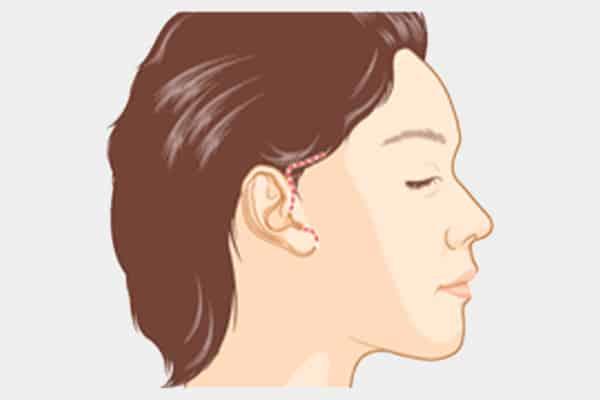 mini facelift surgery incision - dream plastic surgery singapore