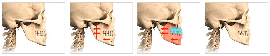surgery procedure steps to correct biting issues or facial asymmetry