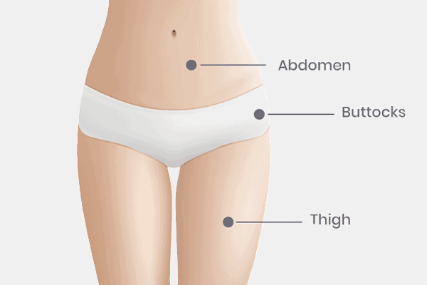 fat grafting - recommended fat extraction areas