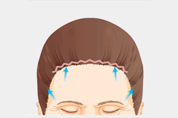 full forehead lift surgery incision site - dream aesthetics and plastic surgery singapore