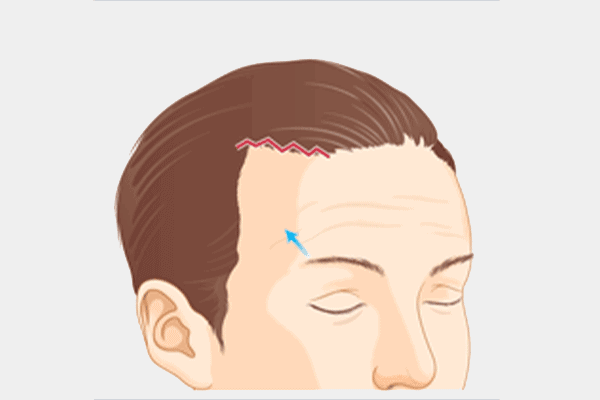 forehead lift surgery incision - dream aesthetics and plastic surgery singapore