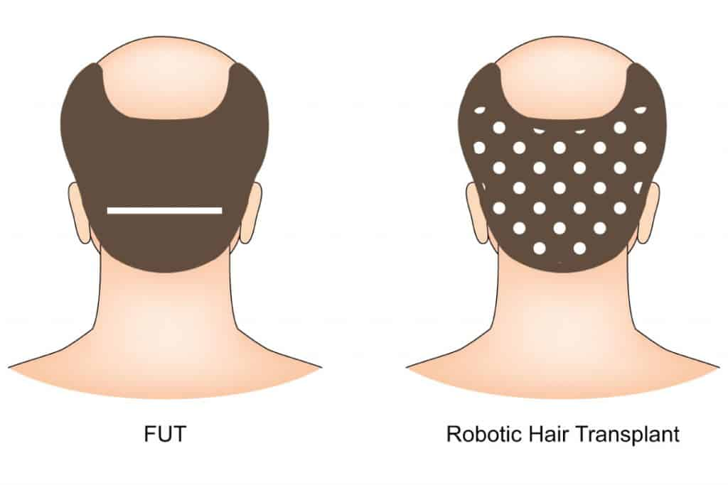 types of scars from hair transplant surgery - dream aesthetics and plastic surgery singapore