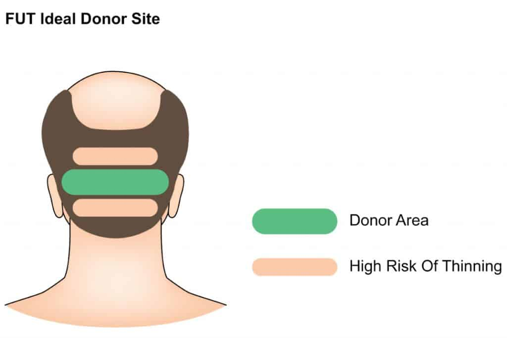 ideal doner area for hair transplant - dream aesthetics and plastic surgery singapore