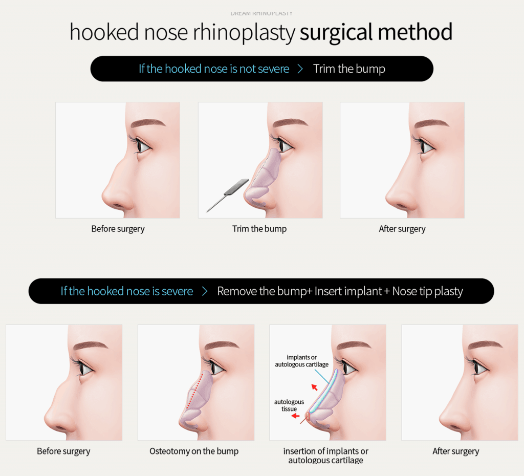 humpectomy surgery - hump nose reduction - dream aesthetics and plastic surgery singapore