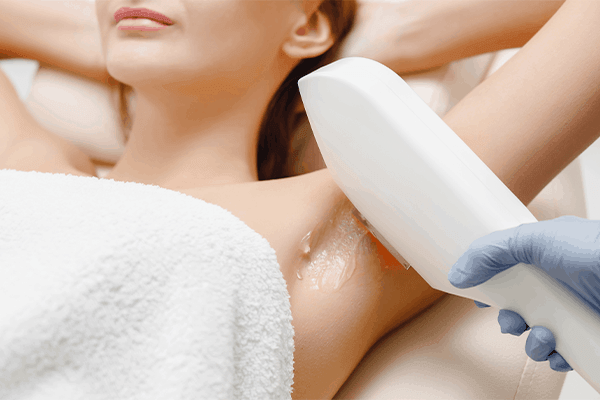 under arm hair removal - dream aesthetics and plastic surgery singapore
