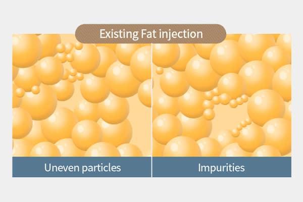nano fat injection - fat grafting - dream plastic surgery singapore