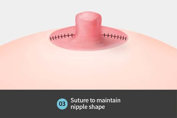 nipple surgery step 3- suture to maintain nipple shape