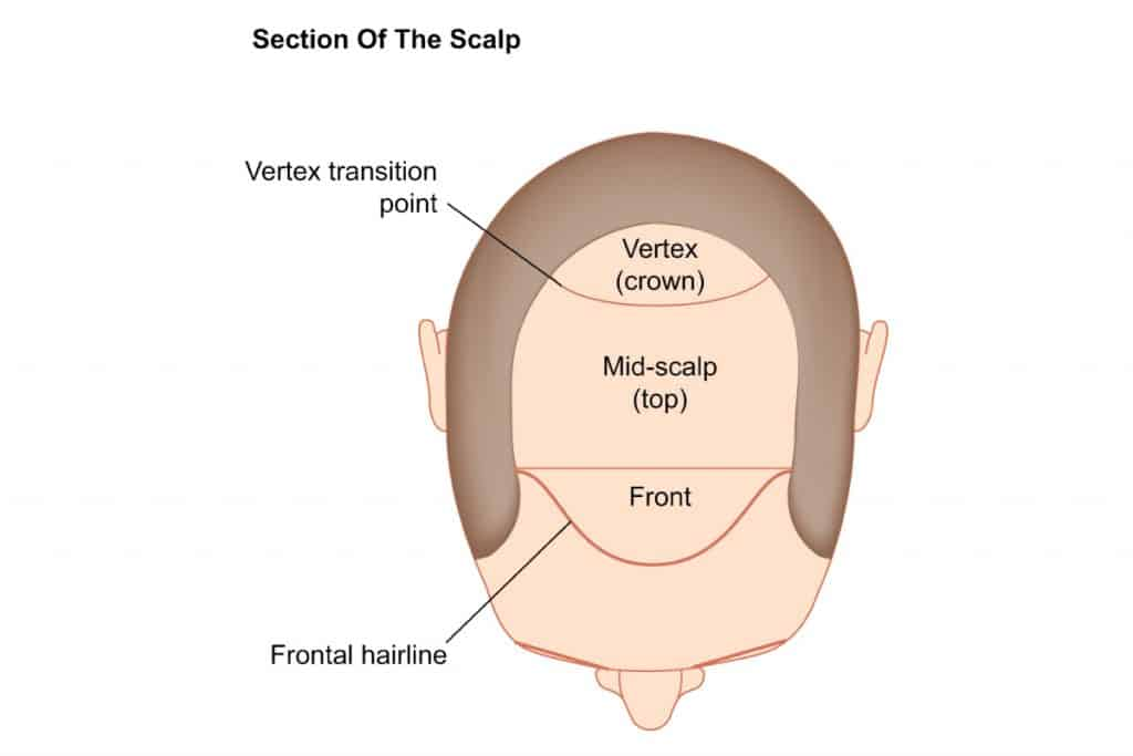 different sections of the scalp
