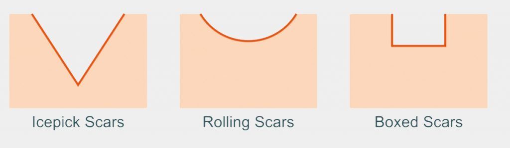 types of scars that is related to acne - dream aesthetics and plastic surgery singapore