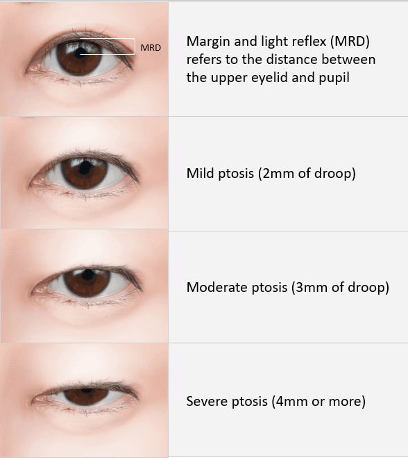 a plastic surgeon u2019s guide on ptosis eyelid surgery in
