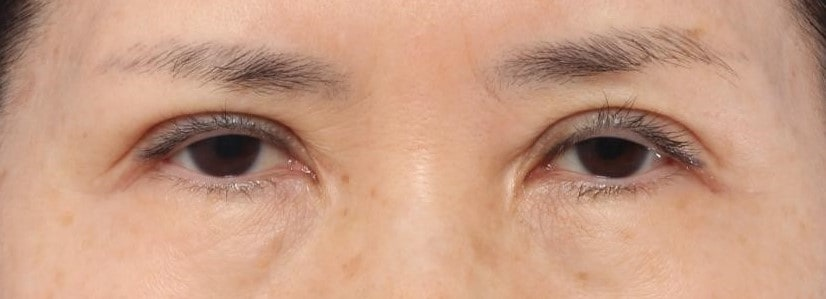 ptosis example 3