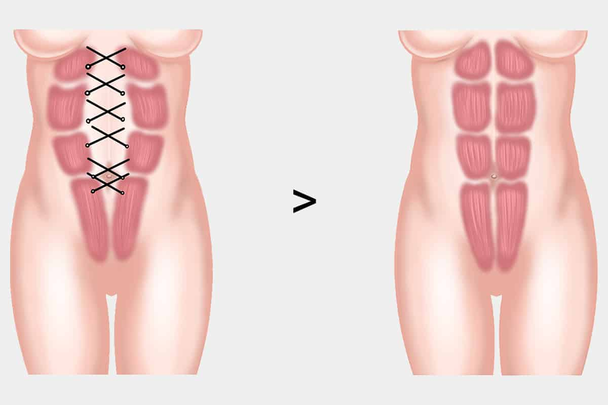 diastasis recti muscle correction surgery singapore